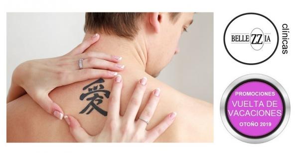 Elimina tus tatuajes y manchas con láser -  - Bellezzia clínicas estéticas en TodoEstetica.com