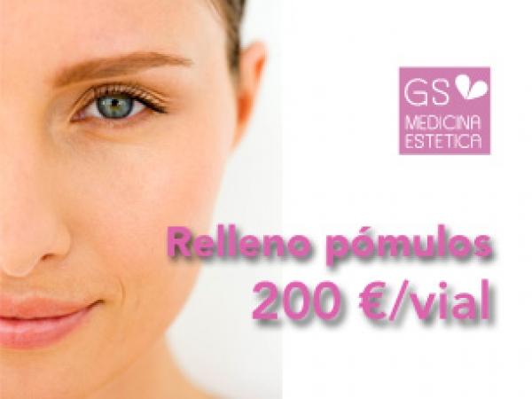 Pómulos relleno de pómulos con ácido hialuronico 200 euros el vial en TodoEstetica.com