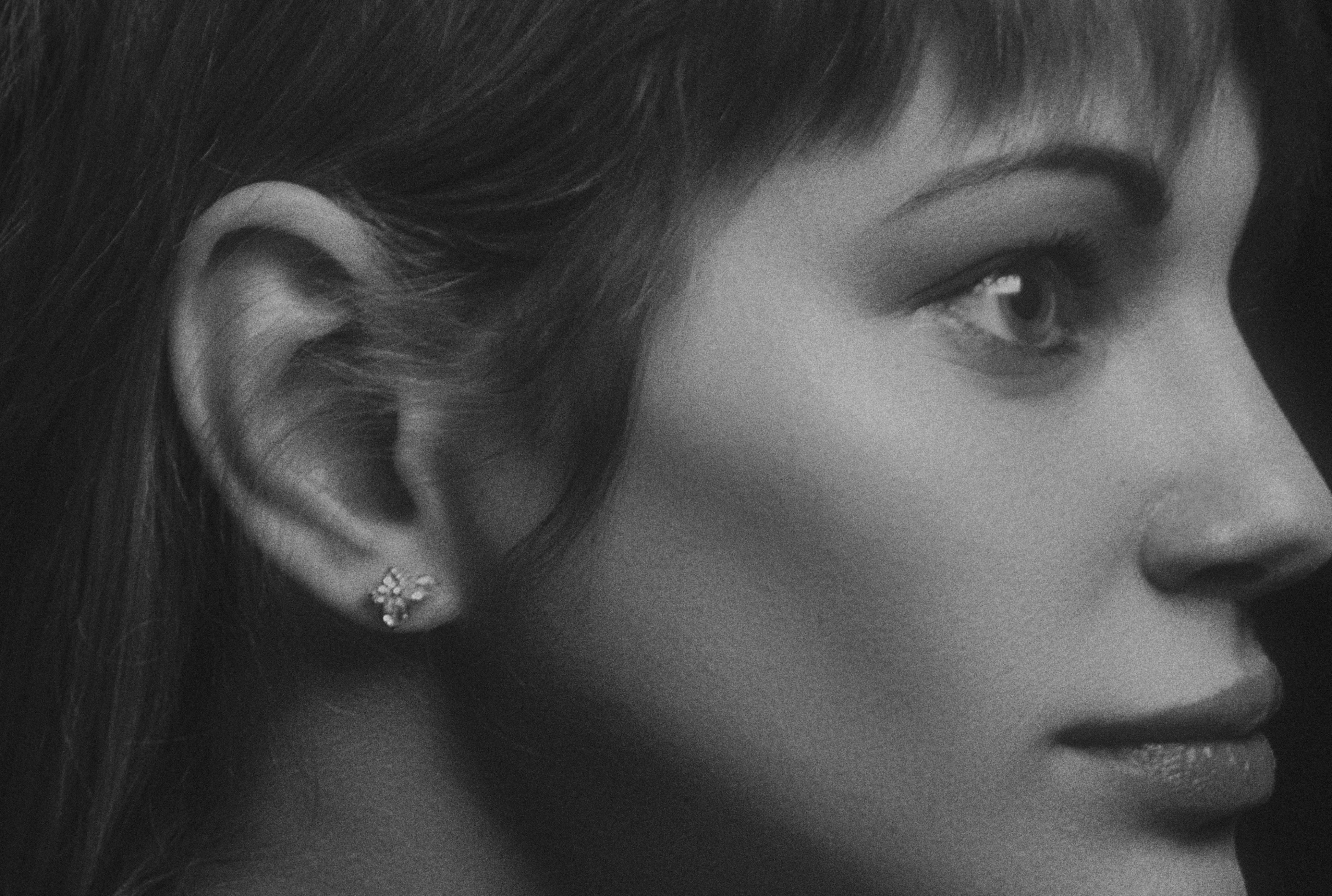 Mis orejas no me gustan. ¿En qué casos se puede hacer una otoplastia?