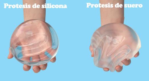 Resultado de imagen de implantes suero salino